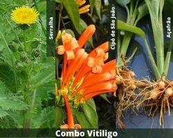COMBO - Vitiligo
